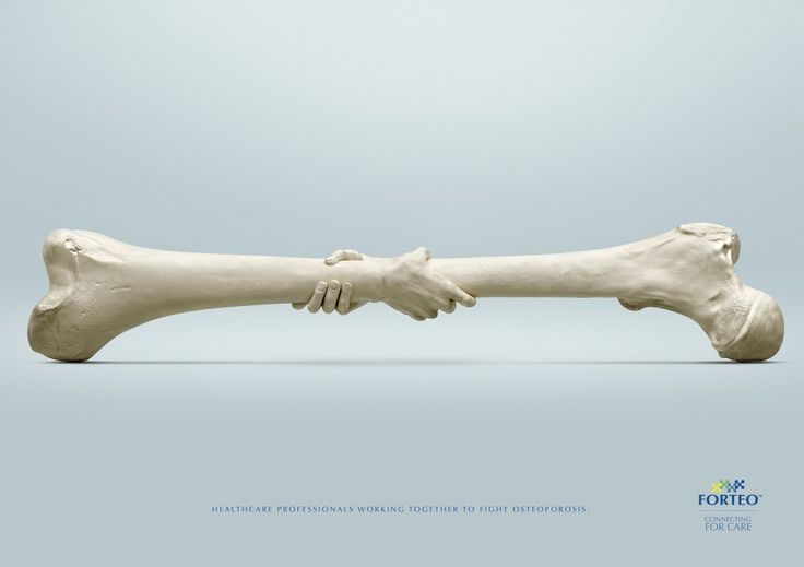 """46fe8c5f81cf54bcf1e7bdd22b36f33f--advertising-agency-creative-advertising Healthcare Advertising : """"Healthcare professionals working together to fight osteoporosis.""""(医療..."""